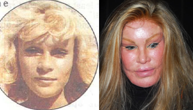 Celebrity Plastic Surgery Disasters Newsbite